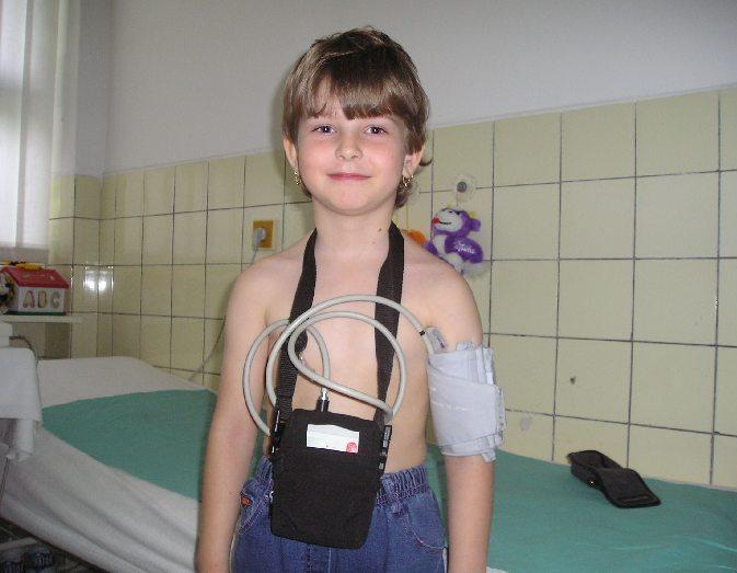 Ambulantný monitor 24 hodinového tlaku krvi
